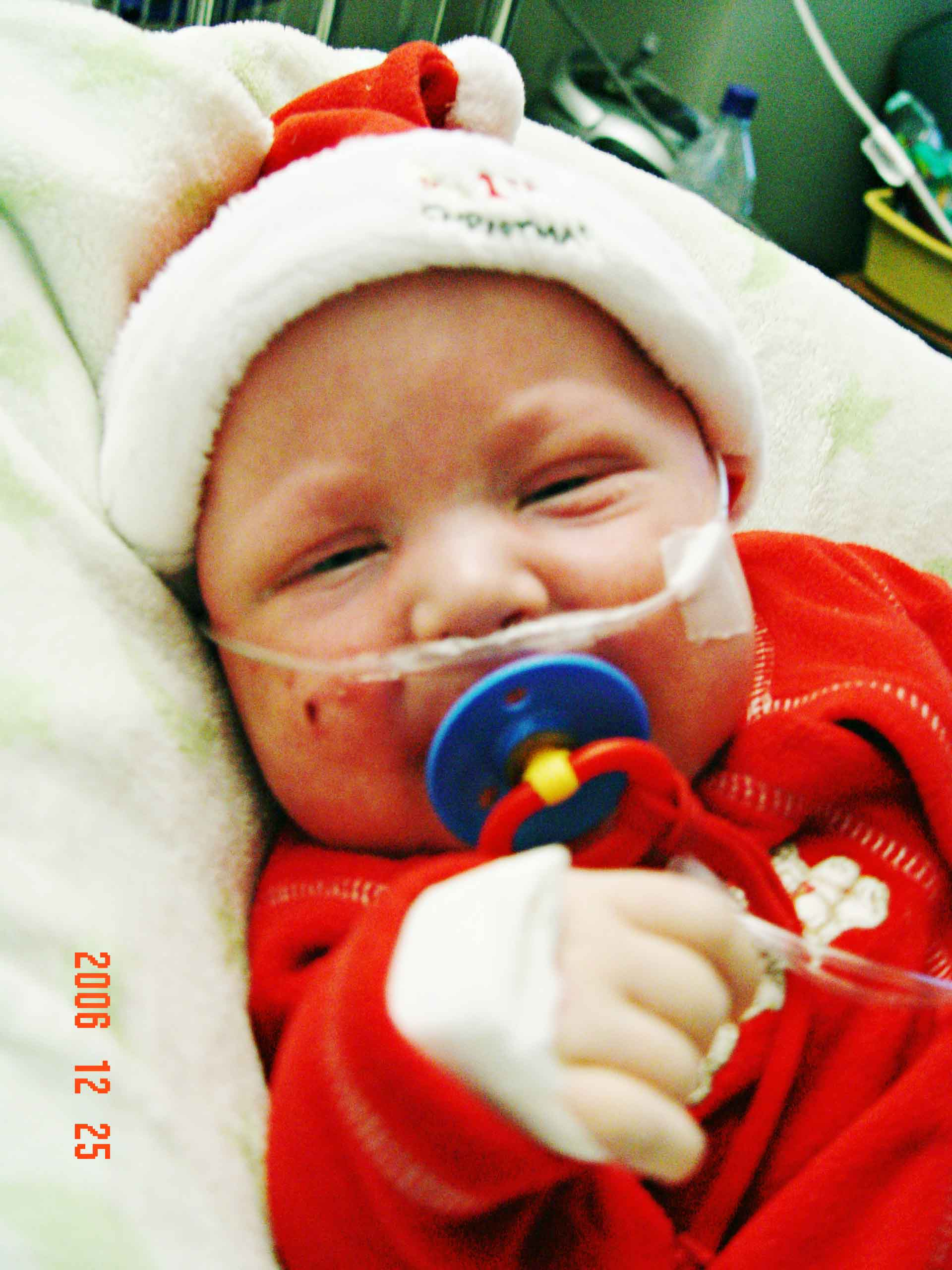 Christmas Miracle - Baby Jaymun makes it through severe complications after bone marrow transplant - weeks in intensive care